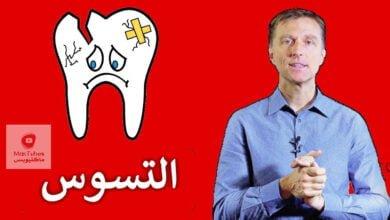 صورة تسوس الاسنان | ما هو سببه و كيف يمكن الوقاية من تسوس الاسنان | للبالغين والاطفال