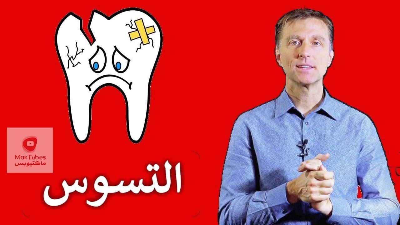 تسوس الاسنان   ما هو سببه و كيف يمكن الوقاية من تسوس الاسنان   للبالغين والاطفال