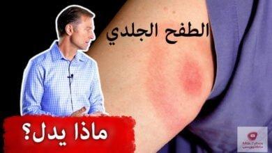 صورة الطفح الجلدي الذي يدل على داء لايم الخطير   ما هي اعراضه؟
