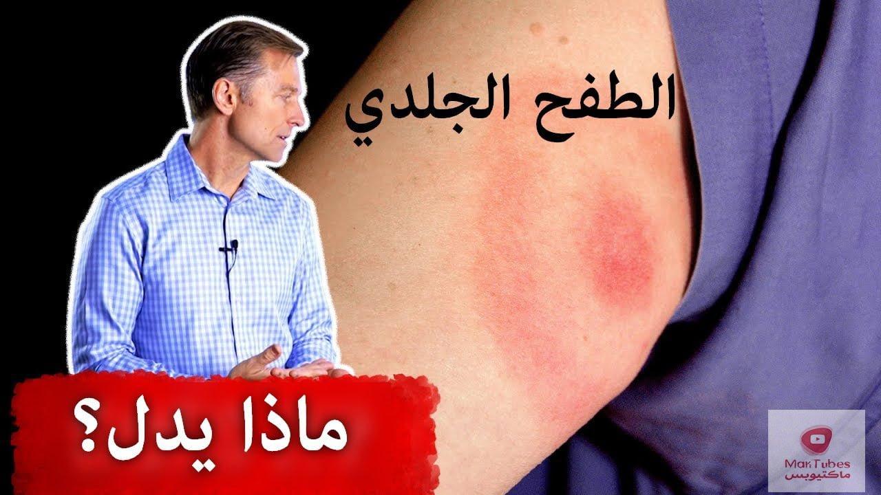 الطفح الجلدي الذي يدل على داء لايم الخطير   ما هي اعراضه؟