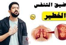 صورة اعراض ضيق التنفس الخطير | متى يجب عليك زيارة الطبيب لعلاج ضيق التنفس؟