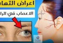 صورة اعراض التهاب الاعصاب في الرأس | هل من الممكن ظهور مضاعغات خطيرة؟