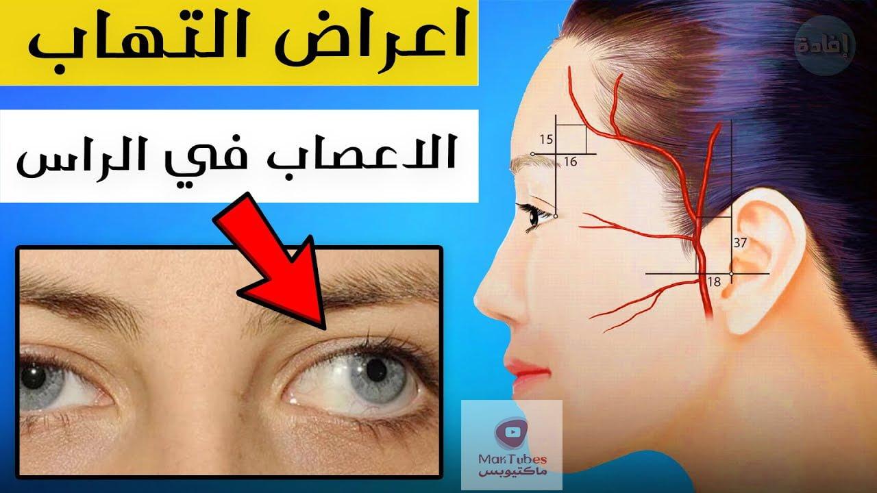 اعراض التهاب الاعصاب في الرأس | هل من الممكن ظهور مضاعغات خطيرة؟