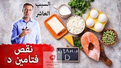 صورة نقص فيتامين د | ما هو السبب العاشر الذي يؤدي لنقص فيتامين د؟