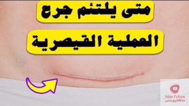 صورة جرح العملية القيصرية | متى يلتئم | وما هي النصائح المتبعة لتعزيز ألتئام الجرح؟
