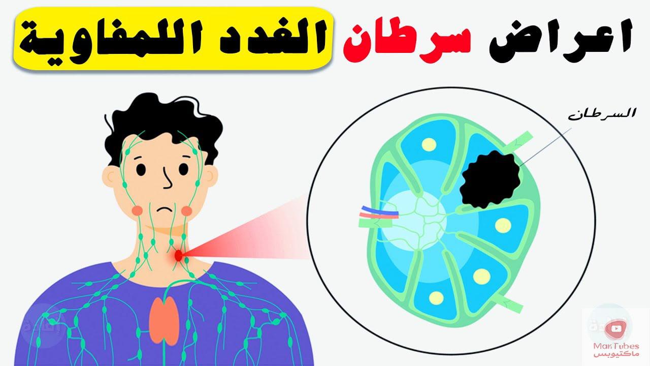 اعراض سرطان الغدد اللمفاوية   ومتى يجب مراجعة الطبيب؟
