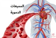 صورة مميعات الدم | الخضار المسموحة والممنوعة عند تناول مميعات الدم