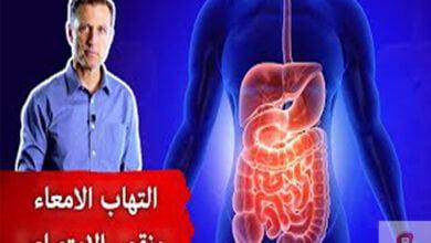 صورة علاج التهاب الامعاء | افضل علاج طبيعي لالتهاب الامعاء تجنب سوء الامتصاص