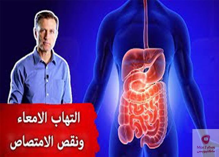 علاج التهاب الامعاء | افضل علاج طبيعي لالتهاب الامعاء تجنب سوء الامتصاص