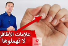 صورة الأظافر | ١٥ علامة على الأظافر تدل على أمراض ونقص فيتامينات ومعادن