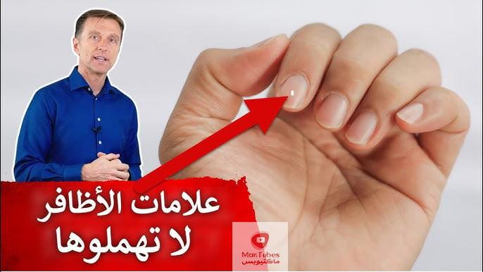 الأظافر   ١٥ علامة على الأظافر تدل على أمراض ونقص فيتامينات ومعادن