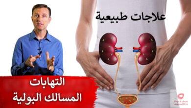 صورة علاج التهابات المثانة | علاجات طبيعية تساعد التهابات المثانة والمسالك البولية
