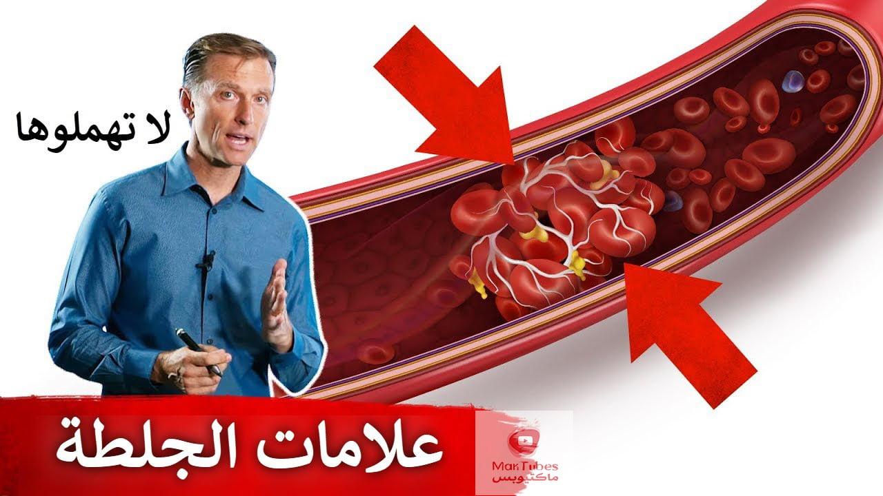 اعراض جلطة القلب والرئة والقدم | علامات قد تدل على وجود تجلطات في الجسم