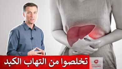 صورة علاج التهاب الكبد | أفضل علاج طبيعي يساعد في التخلص من التهاب الكبد