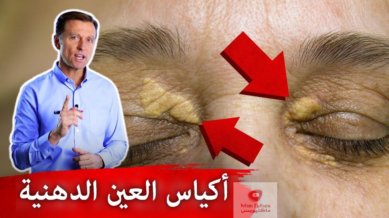 بقع حول العين وأكياس | ما هي أسبابها وكيف يمكن علاجها!