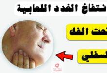 صورة اسباب انتفاخ الغدد اللعابية تحت الفك السفلي | وكيفية علاجها ؟