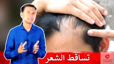 صورة تساقط الشعر لدى النساء | ما هي الاسباب وما هو العلاج المناسب؟
