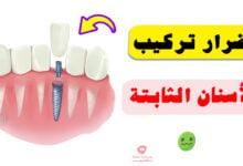 صورة أضرار تركيب الأسنان الثابتة | وما هي اضرارها على المدى البعيد؟