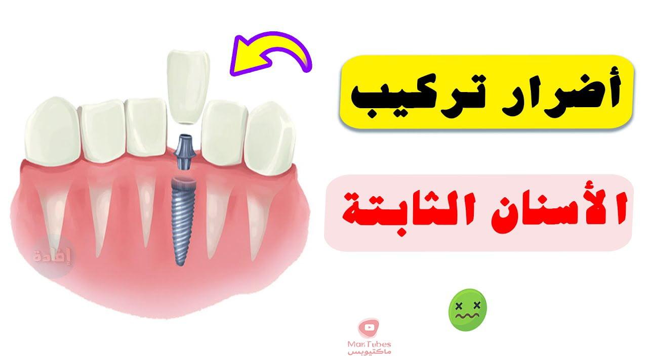 أضرار تركيب الأسنان الثابتة   وما هي اضرارها على المدى البعيد؟